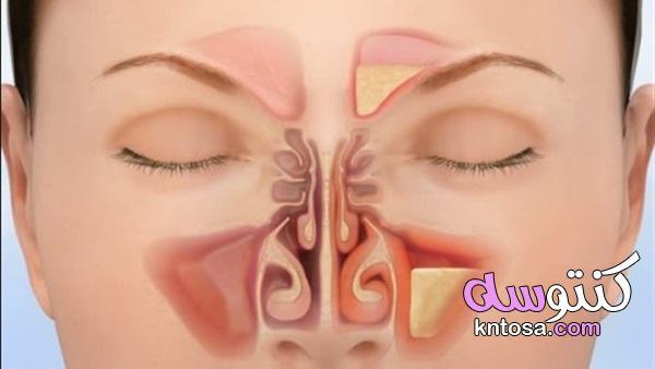 التهاب الجيوب الانفية المزمن،علاج التهاب الجيوب المزمن,ما هي أعراض الجيوب الأنفية kntosa.com_01_19_156
