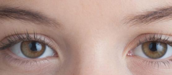 فيتامين e والهالات السوداء، أسباب ظهور الهالات السوداء حول العينين فوائد في kntosa.com_01_19_156