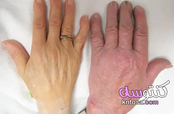 فقر الدم الخبيث.. أسباب وأعراض kntosa.com_01_19_157