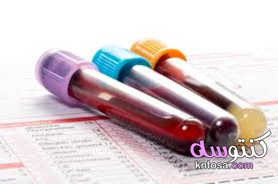 تحليل الحمل بالدم.. متى يظهر وكيف نقرأه؟ تحليل الحمل المنزلي 2020 kntosa.com_05_20_158