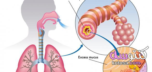 ضيق التنفس كيف تتخلص من ضيق التنفس,تعرّفي إلى أسباب ضيق التنفس,صعوبة التنفس وكيفية علاجها kntosa.com_09_19_156
