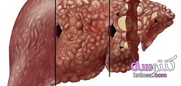 اعراض تليف الكبد ، اسباب تليف الكبد ، علاج أسباب تليف الكبد 2020 kntosa.com_10_19_156