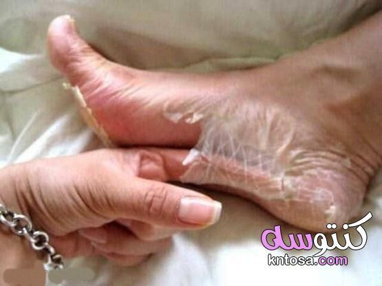 إزالة الجلد الميت من الجسم kntosa.com_10_21_161