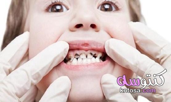 كيف تتجنب تسوس الأسنان وما الوقت المناسب للذهاب إلى الطبيب kntosa.com_11_21_162