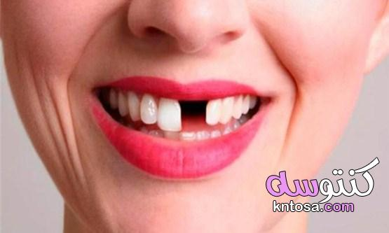 اسباب سقوط الاسنان وطرق العلاج بالأعشاب kntosa.com_12_21_161