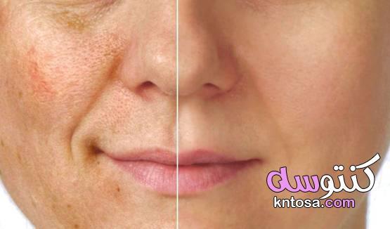 7 طرق طبيعية لمواجهة تصبغ الوجه المزعج kntosa.com_13_21_161