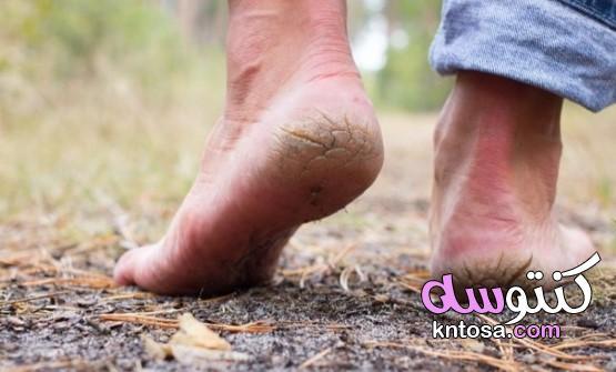 القدم الجافة: 6 علاجات طبيعية لإيجاد أقدام ناعمة kntosa.com_13_21_162