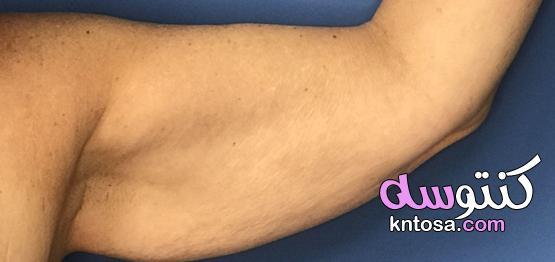 أسباب ترهل الذراعين وعلاجه kntosa.com_16_21_162