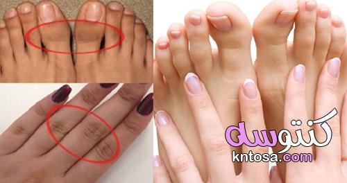 علاج سواد الأصابع بـ«وصفة و5 خطوات»