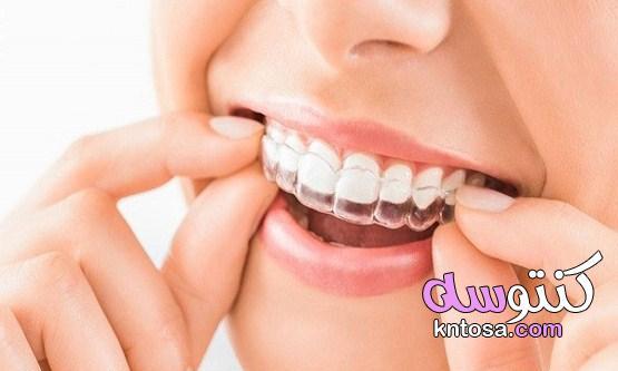 طريقة استخدام لصقات تبييض الأسنان kntosa.com_22_21_162