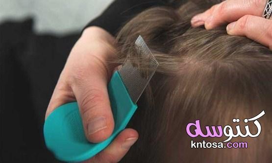 أفضل علاج للقمل والصيبان من الصيدلية kntosa.com_22_21_162