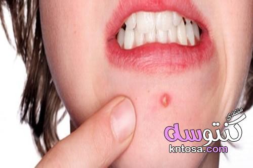 علاج حب الشباب للبشرة الدهنية طبيعيا kntosa.com_23_19_155