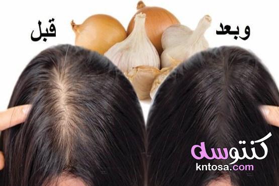 فوائد ماء البصل والثوم للشعر  أفضل 4 خلطات لشعر صحي kntosa.com_23_21_161