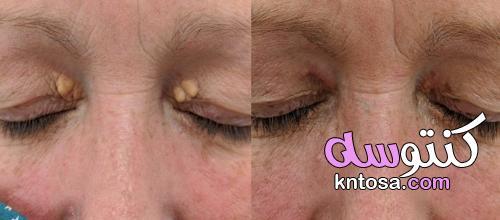 علاج اللويحات الصفراء فوق العين kntosa.com_25_21_163