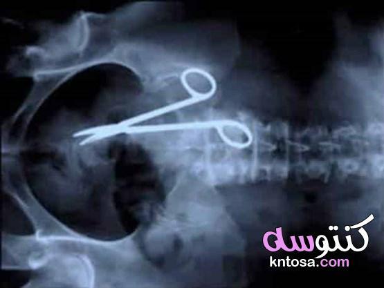 قنبلة وهاتف أغرب صور ملتقطة داخل جسم الإنسان 2020 kntosa.com_29_19_157