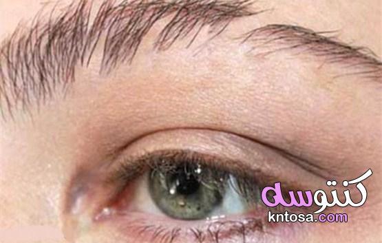 أسباب تساقط شعر الحواجب وطرق العلاج طبيًا وطبيعيًا kntosa.com_29_21_161